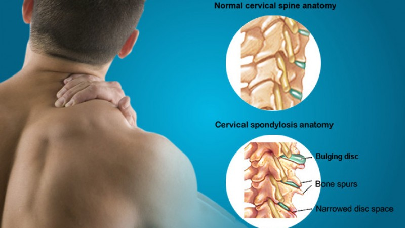 Image result for cervical spondylosis